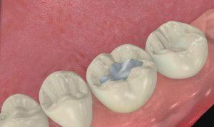 Empaste dental de tipo amalgama, odontologia restauradora, tratamientos