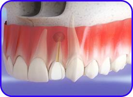 Apicectomía. Cirugía oral en clínica dental Tetuán, Madrid