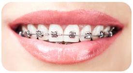 Tratamiento de ortodoncia con Brackets Autoligables en Tetuán