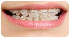 Tratamiento de Ortodoncia con Brackets Ceramicos en Tetuán