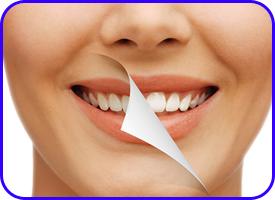 Blanqueamiento Dental. Tratamientos de estética dental en Tetuán, Madrid