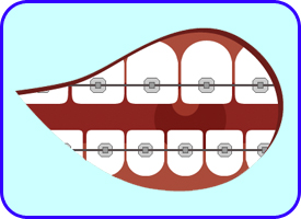 Brackets Autoligables, Ortodoncia, Tratamientos dentales