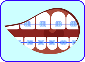 Brackets Ceramicos, Ortodoncia Estetica, Tratamientos dentales