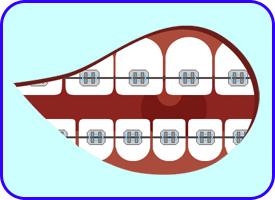Brackets metálicos, Ortodoncia Convencional, Tratamientos dentales