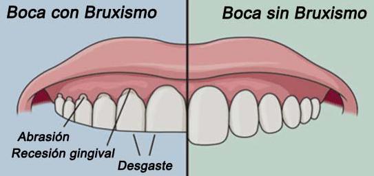 Bruxismo, Patologia de la ATM en clínica dental Tetuán