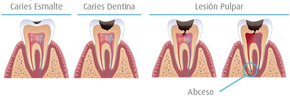 Tratamiento de carie. Odontologia Conservadora con empastes y endodoncias
