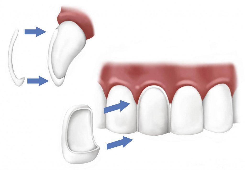 Carillas dentales estéticas estéticas de porcelana y composite en Centro dental Tetuán
