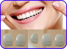 Carillas estéticas. Tratamientos de estética dental en Tetuán, Madrid
