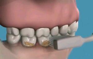 Limpieza Dental Profesional para tratamiento de Periodoncia en clínica Tetuán, Madrid
