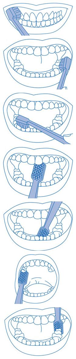 Cepillado dental en clínica Tetuán, Madrid