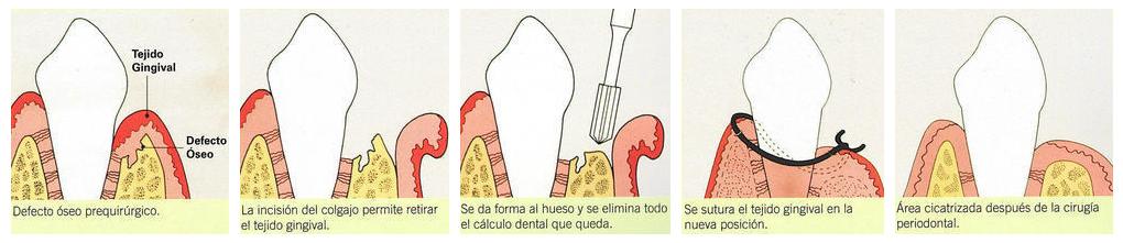 Cirugia Periodontal para tratamiento de periodoncia en clínica dental Tetuán, Madrid