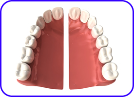 Composturas, Prótesis dentales en Tetuán, Madrid