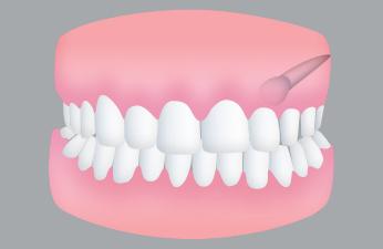 Extracción de dientes incluidos. Cirugía oral en clínica dental Tetuán, Madrid