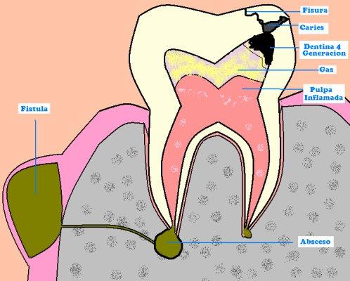 Drenajes en cirugía Oral. Clínica dental Tetuán en Madrid