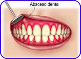 Drenajes. Cirugía oral en clínica dental Tetuán, Madrid
