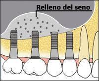 Elevación de seno. Cirugía Oral en clínica dental en Madrid