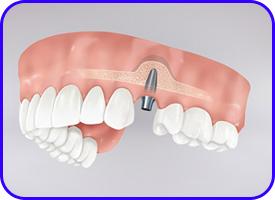 Elevación de seno. Cirugía oral en clínica dental Tetuán, Madrid