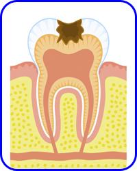Empastes, Odontología Conservadora