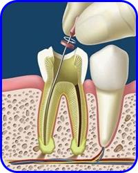 Endodoncia, Odontología Conservadora