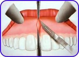 Frenectomía. Cirugía oral en clínica dental Tetuán, Madrid