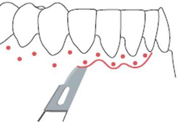 Gingivectomia para tratamiento de periodoncia en clínica dental Tetuán, Madrid