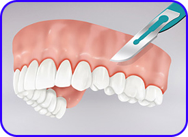 Gingivectomia en clínica dental Tétuán, Madrid
