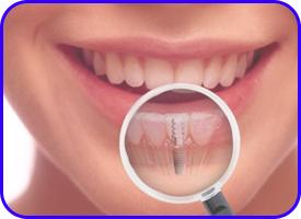 Implantes dentales en Tetuán, Madrid