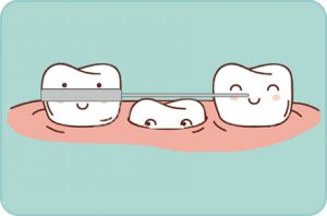 Mantenedor de espacio, Odontopediatria, Tratamientos dentales