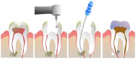 Endodoncia Multiradicular en dentista en Tetuán, odontologia conservadora, tratamientos
