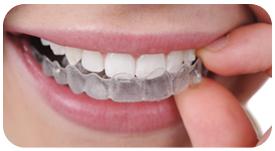 Ortodoncia invisible INVISALIGN. Tratamiento de ortodoncia en Tetuán
