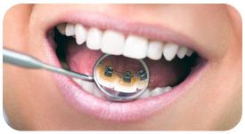Tratamiento de ortodoncia lingual en Tetuán
