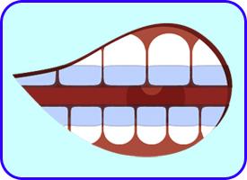 Ortodoncia Invisible o Invisalign, Ortodoncia, Tratamientos dentales