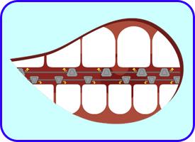 Ortodoncia Lingual, Ortodoncia, Tratamientos dentales