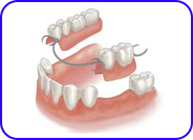 Protesis Removible, Prótesis dentales en Tetuán, Madrid