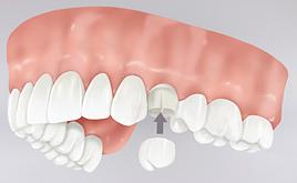 Prótesis dental fija corona sobre dientes en Tetuán, Madrid