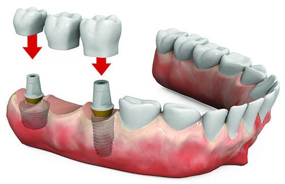 Prótesis dental fija puentes sobre dientes en Tetuán, Madrid