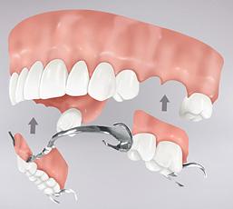 Protesis Removibles Parcial en clínica dental Tetuán, Madrid