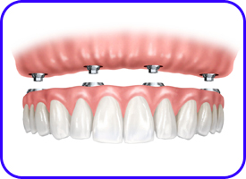Prótesis sobre implante dental en clínica dental de Tetuán, Madrid