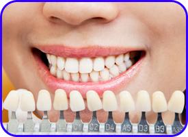 Prótesis dental en Tetuán, Madrid