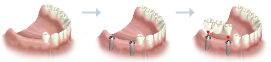 Puente sobre implante dental. Clínica dental en Tetuán, Madrid