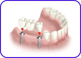 Puente sobre implantes dentales en clínica dental de Tetuán, Madrid