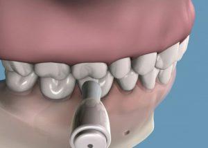 Pulido, Limpieza Dental Profesional para tratamiento de Periodoncia en clínica Tetuán, Madrid