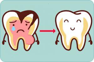 Pulpectomia, Odontopediatria, Tratamientos dentales