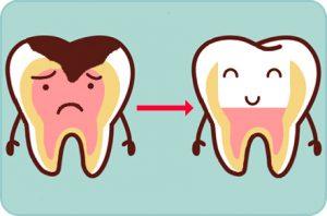 Pulpotomia, Odontopediatria, Tratamientos dentales