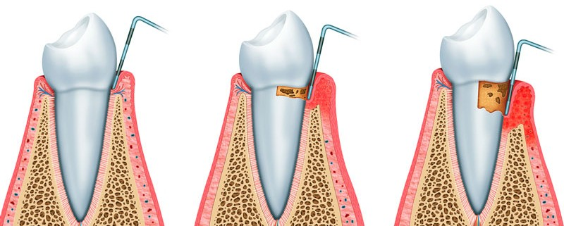 Raspaje y Alisado Radicular para tratamiento de Periodoncia en clínica dental Tetuán, Madrid
