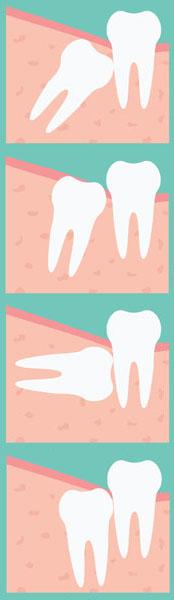 Extracción de terceros molares. Cirugía Oral en clínica dental Tetuán, Madrid