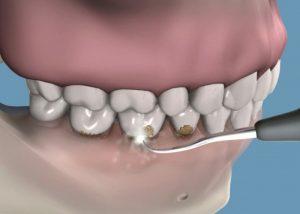 Ultrasonido, Limpieza Dental Profesional para tratamiento de Periodoncia en clínica Tetuán, Madrid