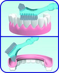 Limpieza y fijacion de prótesis dentales en clínica Tetuán, Madrid